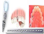 Implantes Dentales en Mexico DF CDMX